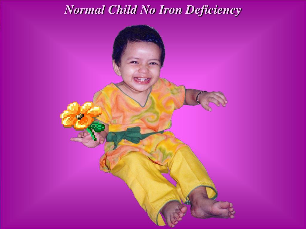 Normal Child No Iron Deficiency