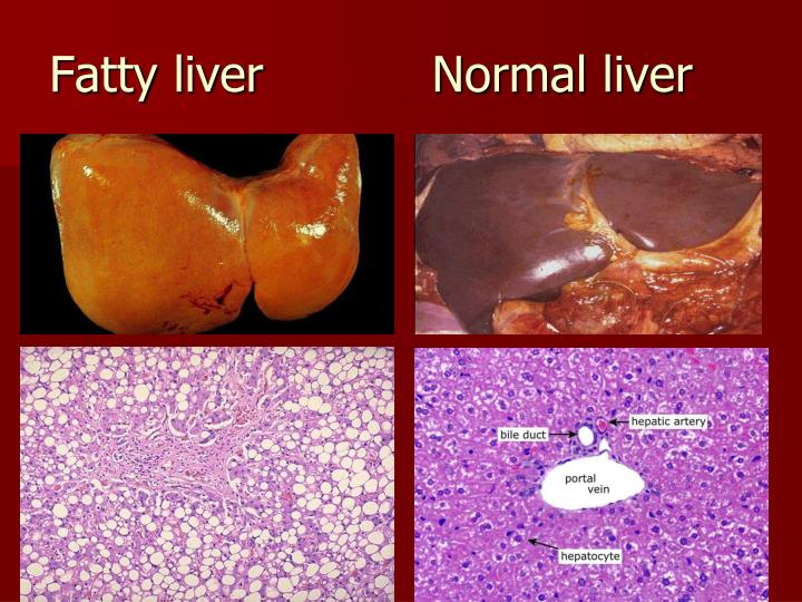Fatty liver           Normal liver