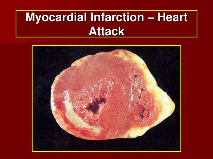 Myocardial Infarction – Heart Attack