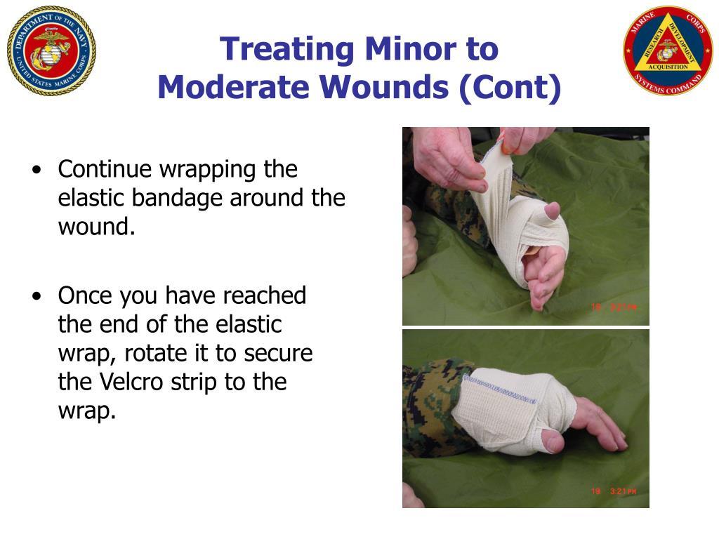 Treating Minor to