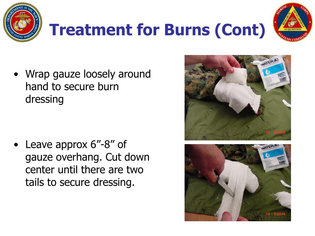 Treatment for Burns (Cont)