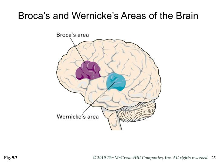 Broca's and Wernicke's Areas of the Brain