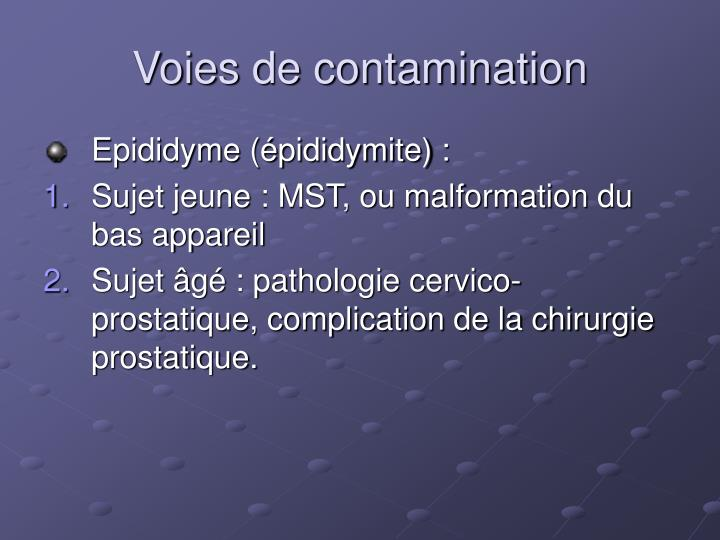 PPT - Infections génito-urinaires PowerPoint Presentation