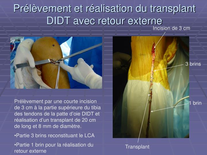 Prélèvement et réalisation du transplant DIDT avec retour externe