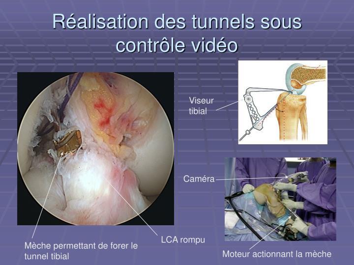 Réalisation des tunnels sous contrôle vidéo