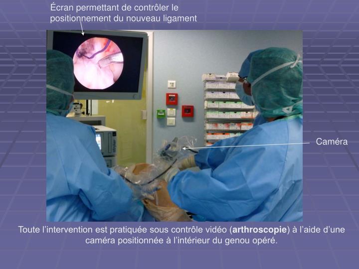 Écran permettant de contrôler le positionnement du nouveau ligament
