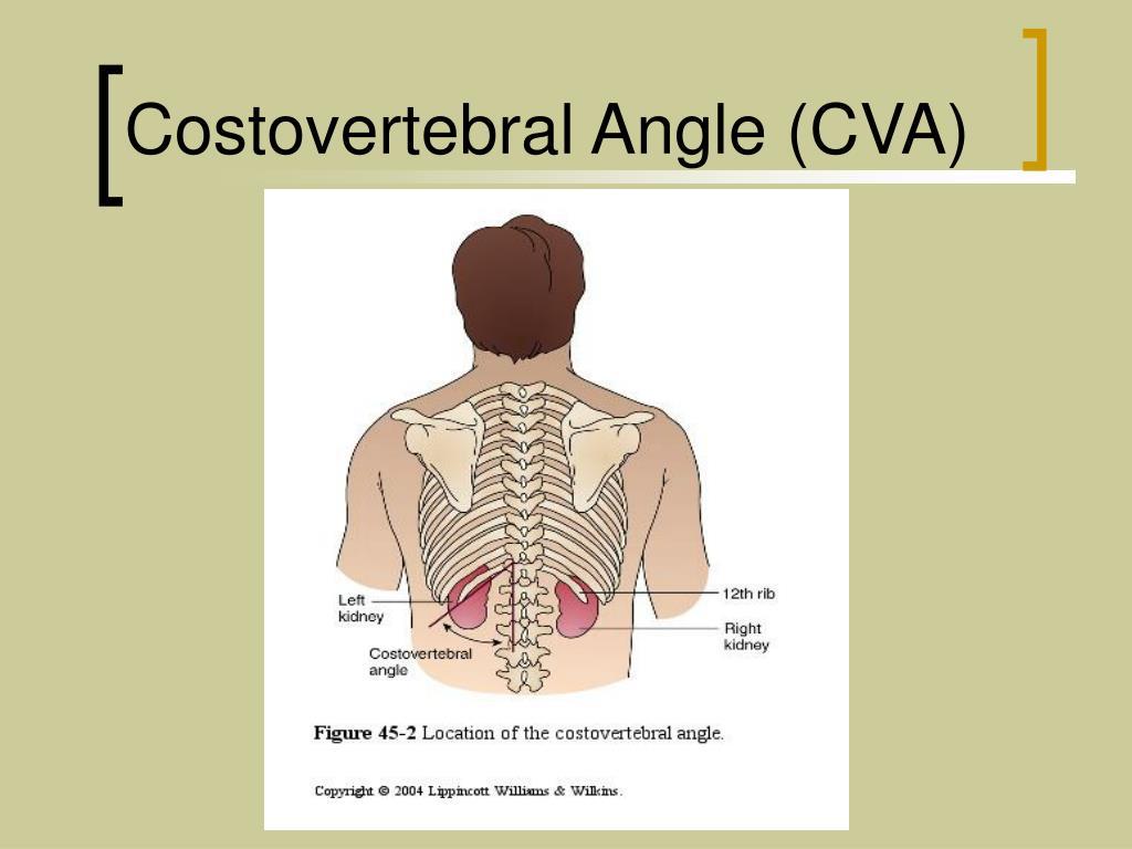 Costovertebral Angle (CVA)