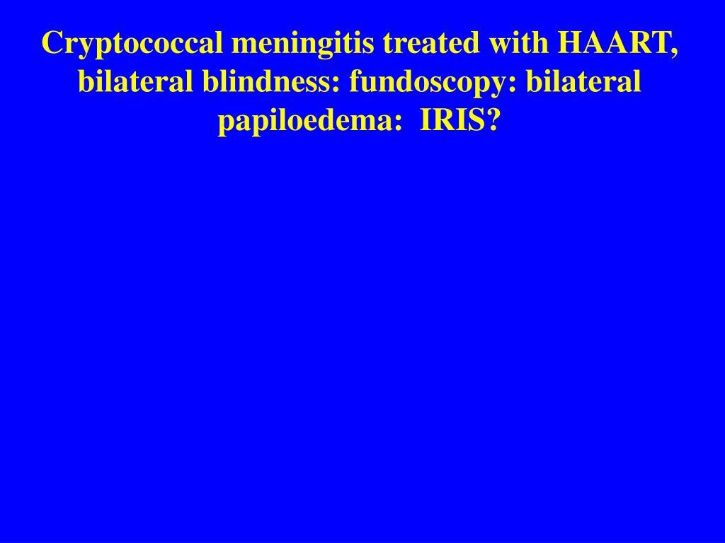 Cryptococcal meningitis treated with HAART, bilateral blindness: fundoscopy: bilateral papiloedema:  IRIS?