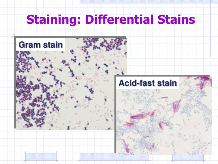 Staining differential stains
