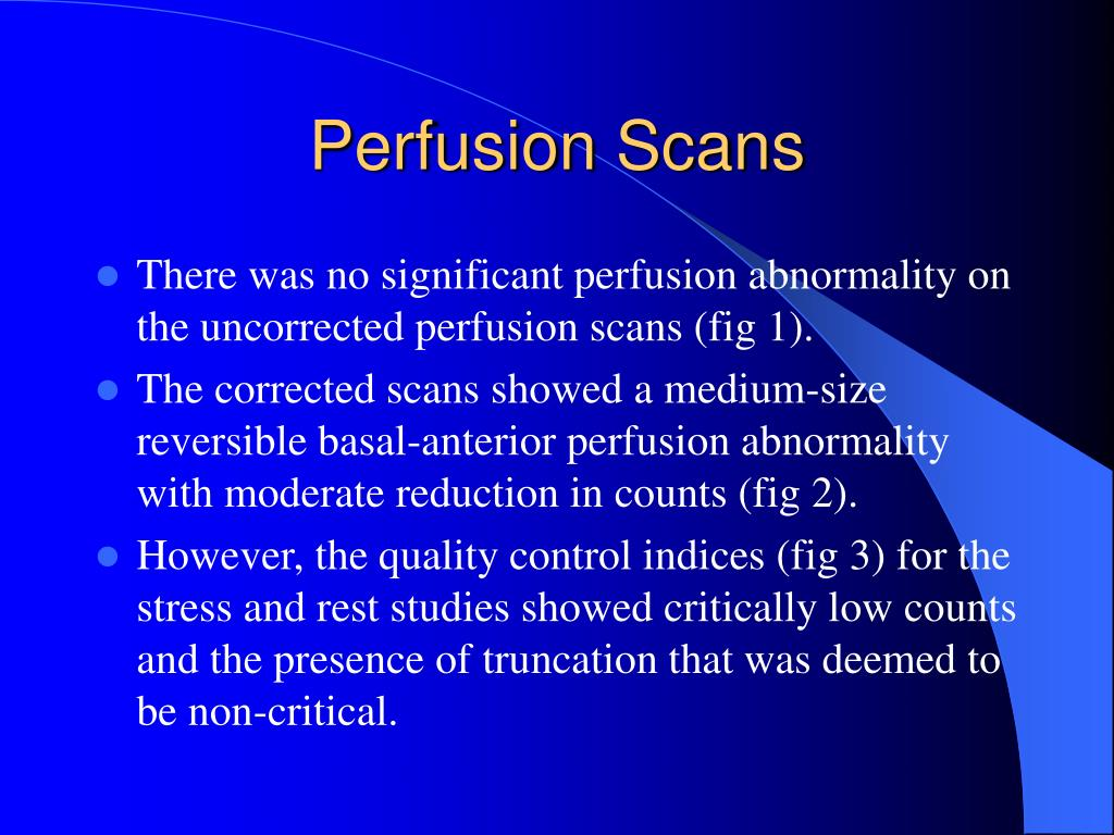 Perfusion Scans