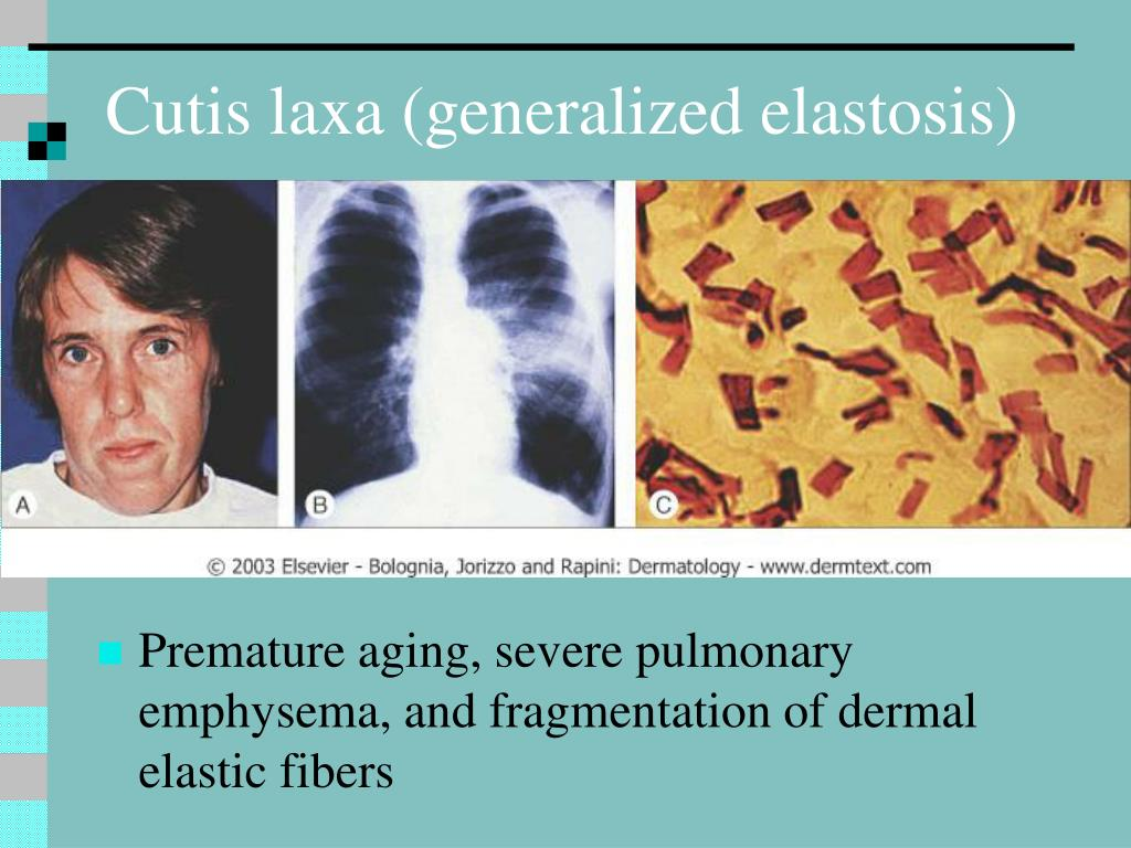 Cutis laxa (generalized elastosis)
