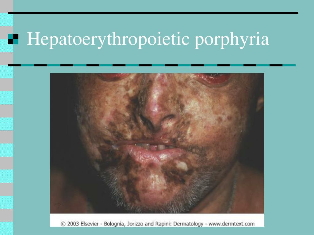 Hepatoerythropoietic porphyria