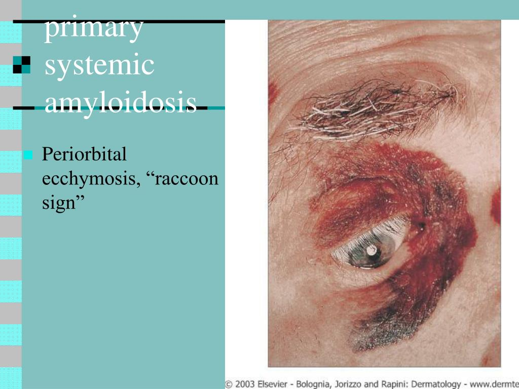"Periorbital ecchymosis, ""raccoon sign"""
