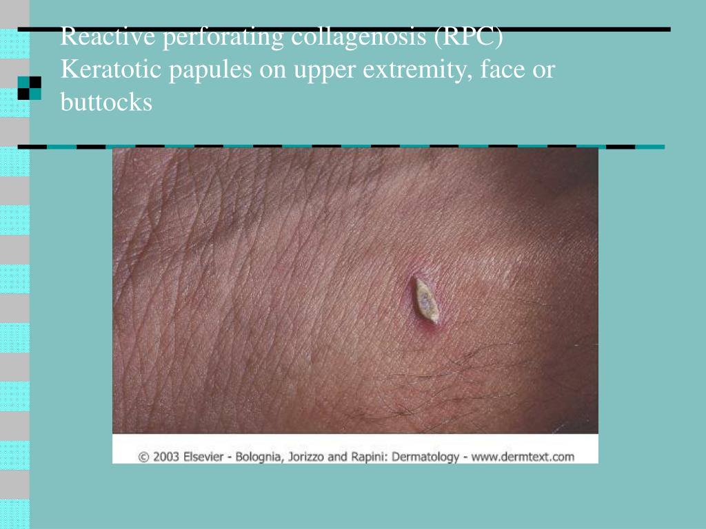 Reactive perforating collagenosis (RPC)