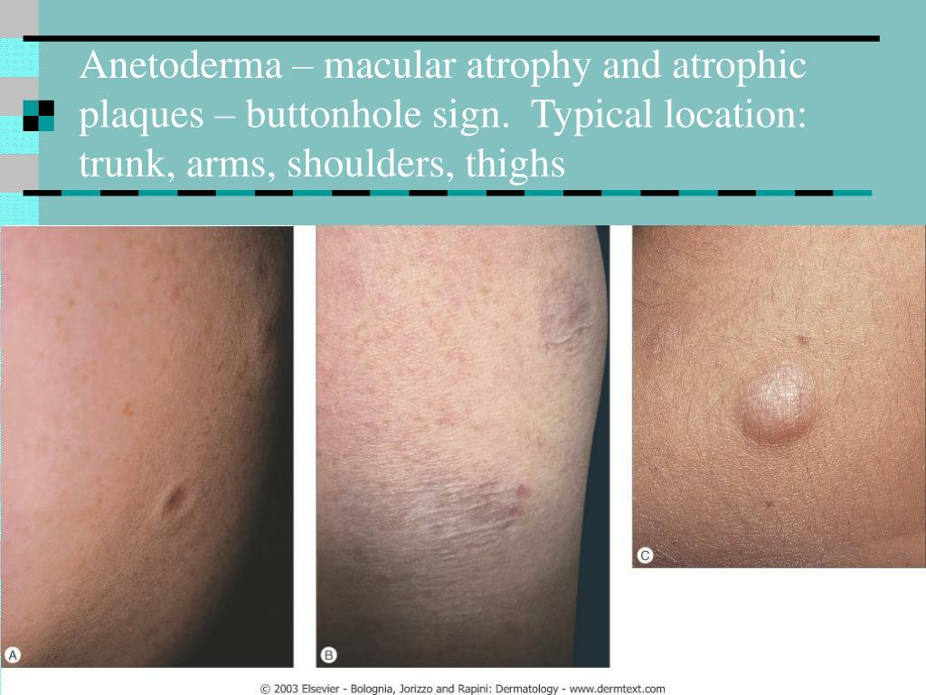 Anetoderma – macular atrophy and atrophic plaques – buttonhole sign.  Typical location: trunk, arms, shoulders, thighs