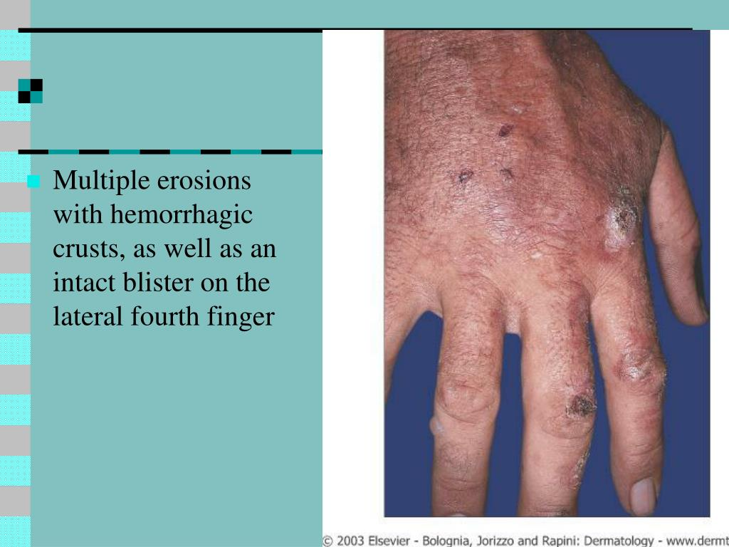Multiple erosions with hemorrhagic crusts, as well as an intact blister on the lateral fourth finger