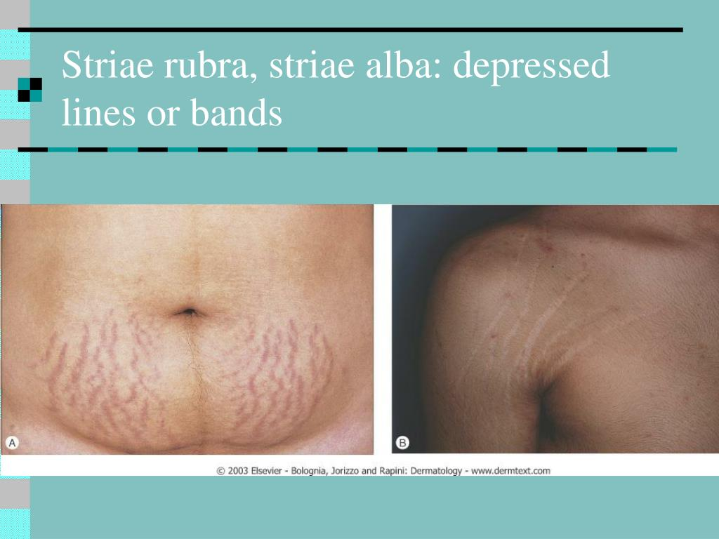 Striae rubra, striae alba: depressed lines or bands