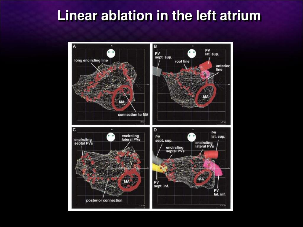 Linear ablation in the left atrium