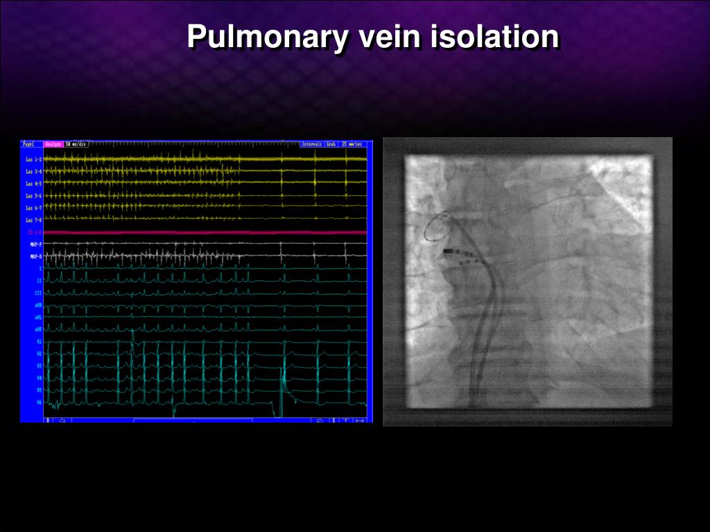 Pulmonary vein isolation