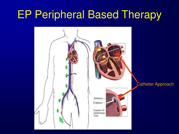 EP Peripheral Based Therapy