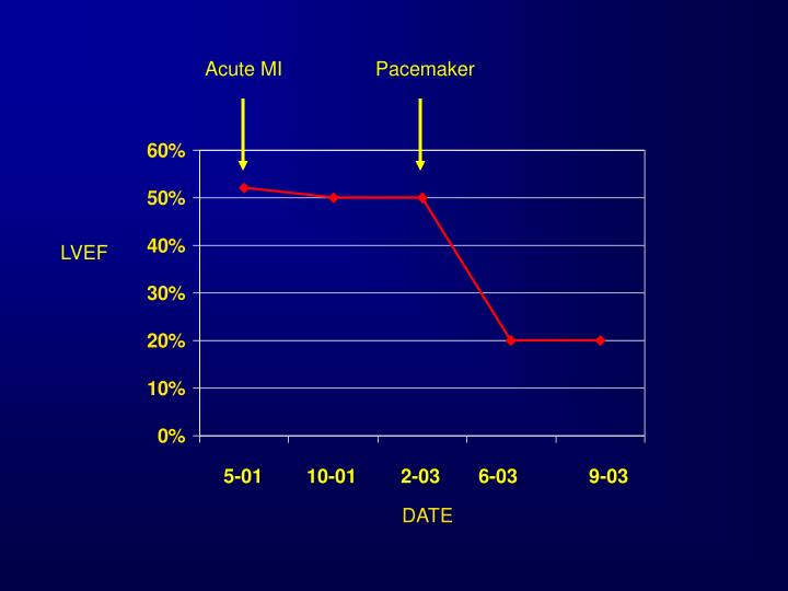 Acute MI                 Pacemaker