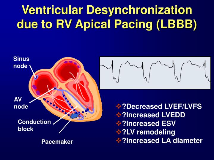 Ventricular Desynchronization due to RV Apical Pacing (LBBB)