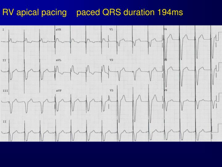 RV apical pacing    paced QRS duration 194ms