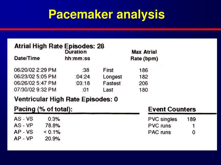 Pacemaker analysis