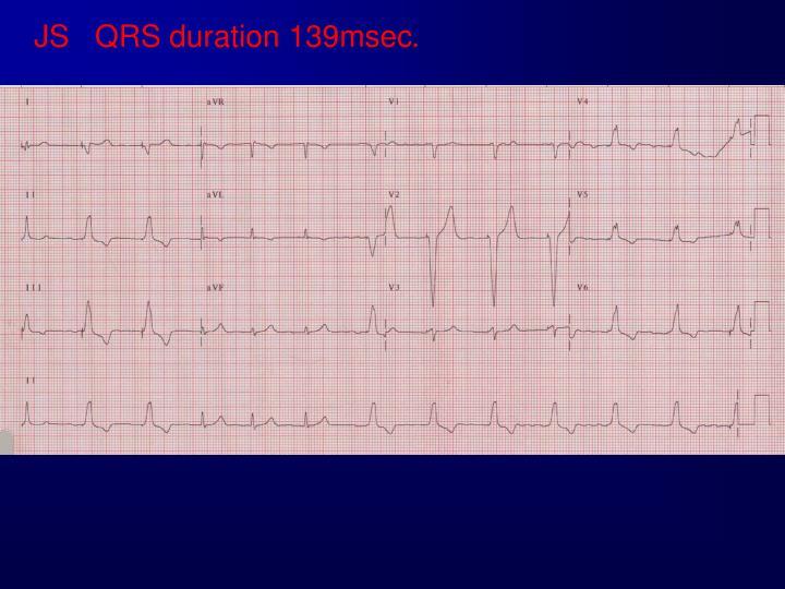 JS   QRS duration 139msec