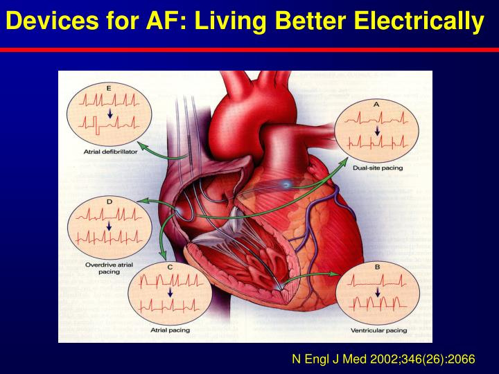 Devices for AF: Living Better Electrically