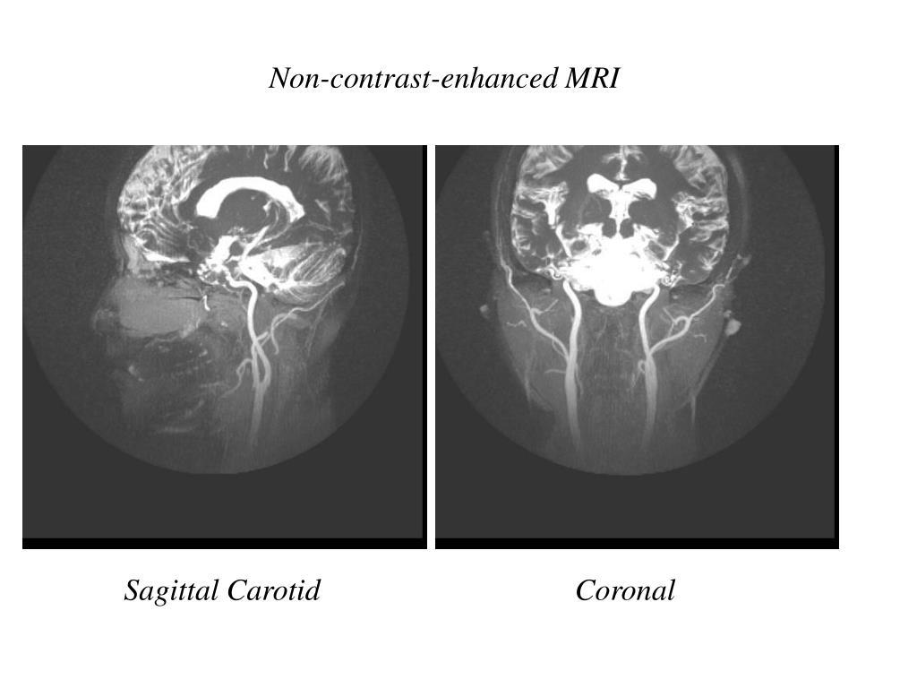 Non-contrast-enhanced MRI