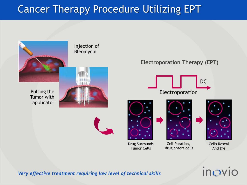 Cancer Therapy Procedure Utilizing EPT
