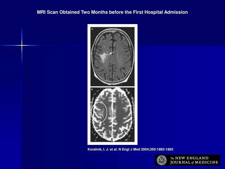 MRI Scan Obtained Two Months before the First Hospital Admission