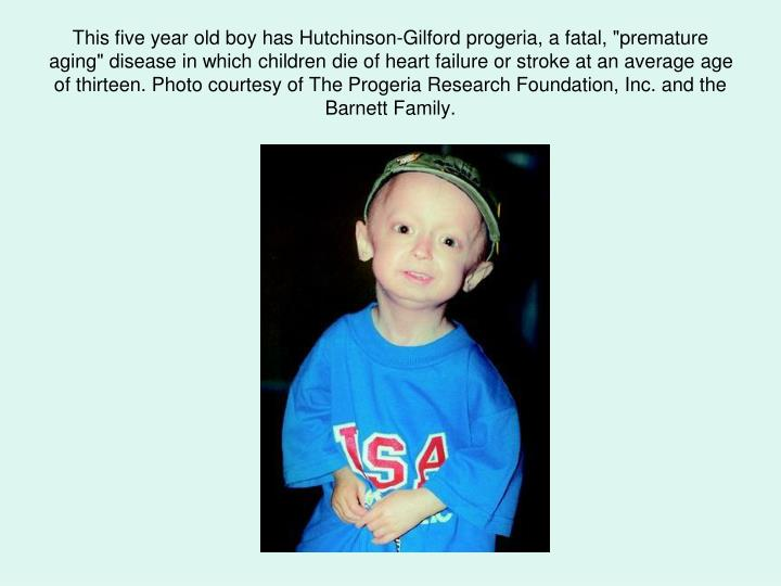 "This five year old boy has Hutchinson-Gilford progeria, a fatal, ""premature aging"" disease in which children die of heart failure or stroke at an average age of thirteen. Photo courtesy of The Progeria Research Foundation, Inc. and the Barnett Family."