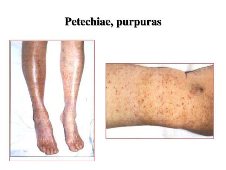 Petechiae, purpuras