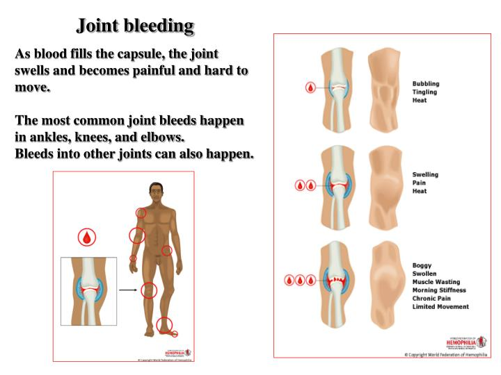 Joint bleeding