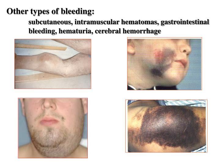 Other types of bleeding: