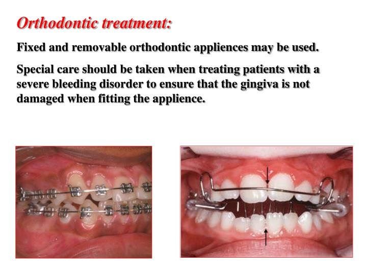 Orthodontic treatment: