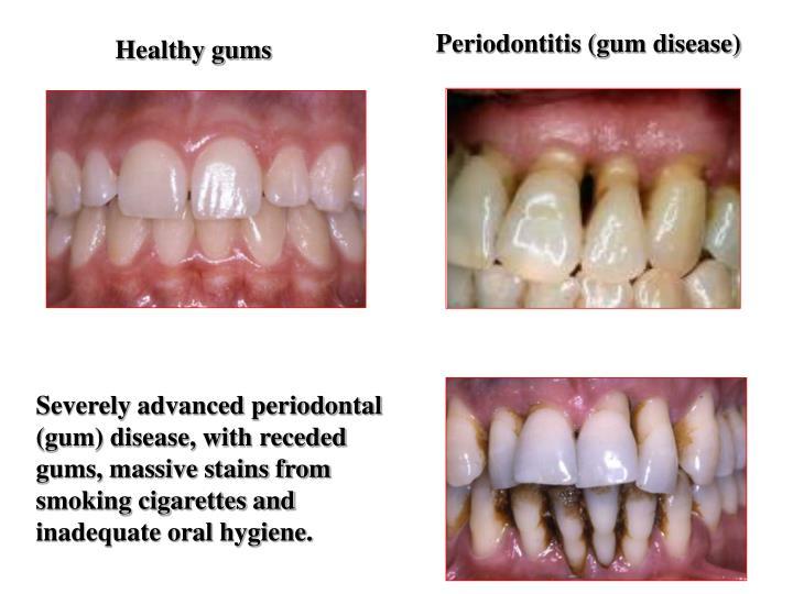 Periodontitis (gum disease)