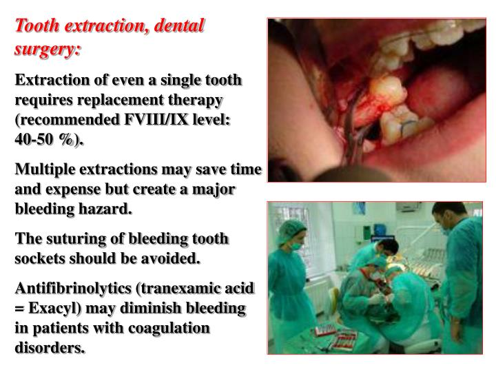 Tooth extraction, dental surgery: