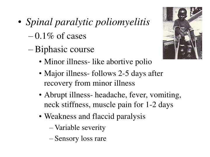 Spinal paralytic poliomyelitis