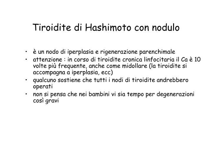 Tiroidite di Hashimoto con nodulo