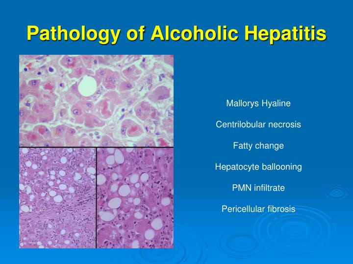Pathology of Alcoholic Hepatitis
