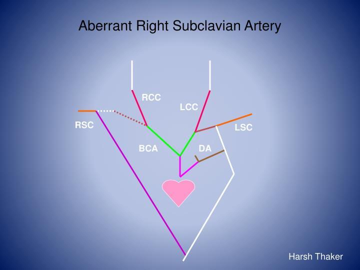 PPT - Human Embryology: Heart Development II PowerPoint ...