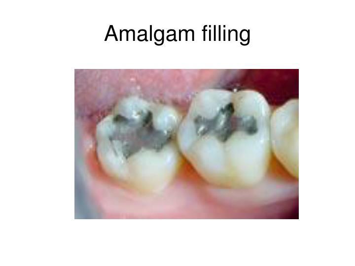 Amalgam filling