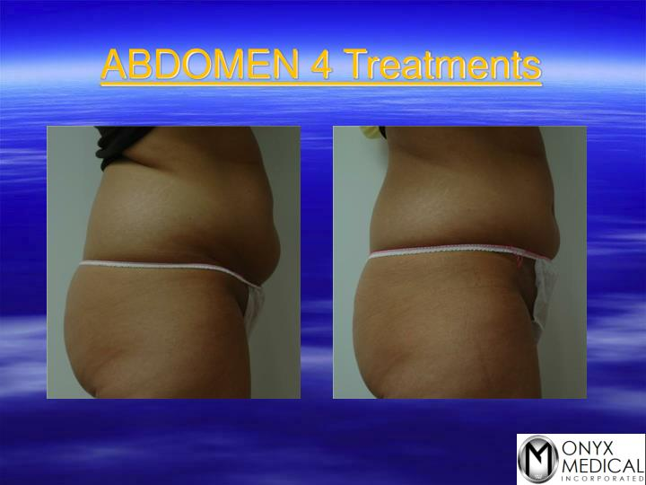 ABDOMEN 4 Treatments