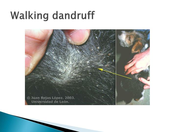 Walking dandruff