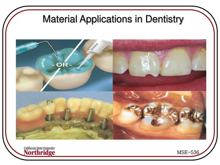 Material Applications in Dentistry