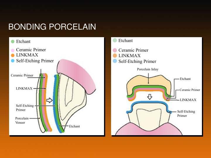 BONDING PORCELAIN