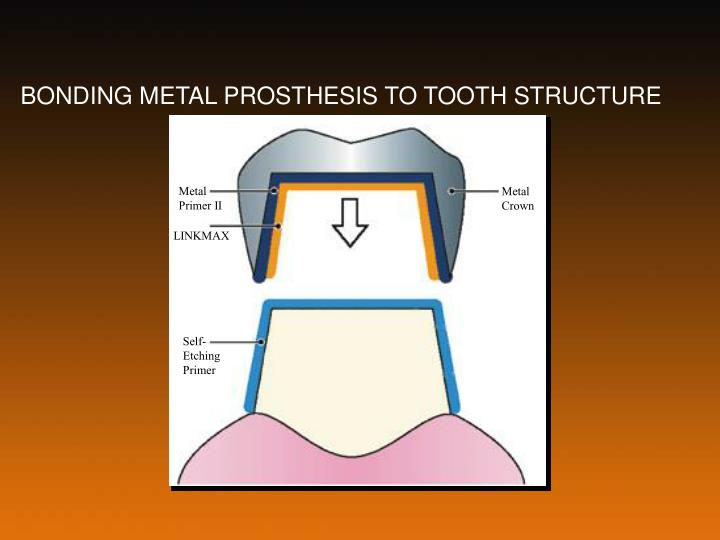 BONDING METAL PROSTHESIS TO TOOTH STRUCTURE